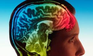woman brain scan