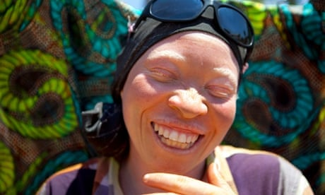Albinism in Tanzania: safe havens in schools and support centres - in pictures