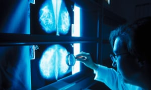 A doctor inspects mammogram for signs of breast cancer.