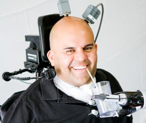 A neuro-prosthetic device implanted in Erik Sorto's brain allowed him to drink unaided for the first time in ten years.