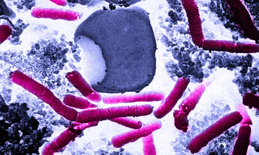 The Pentagon says it accidentally sent live anthrax spores to laboratories.