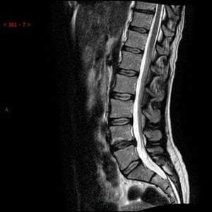 Alice Roberts's vertebral column scan, showing the Schmorls node and slipped disc.