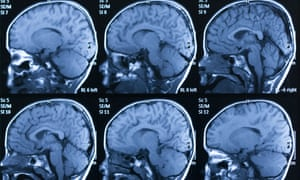 Brain Imaging Reveals Adhd As >> Brain Scans Of Premature Babies Reveal Changes That May Raise Risk