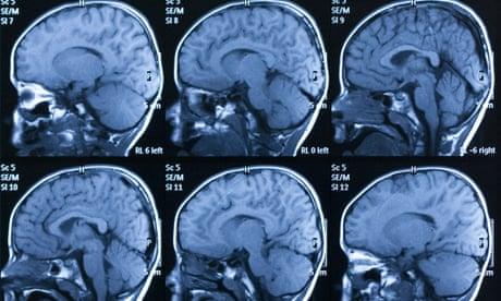 Autism How Unorthodox Treatments Can >> Autism How Unorthodox Treatments Can Exploit The Vulnerable