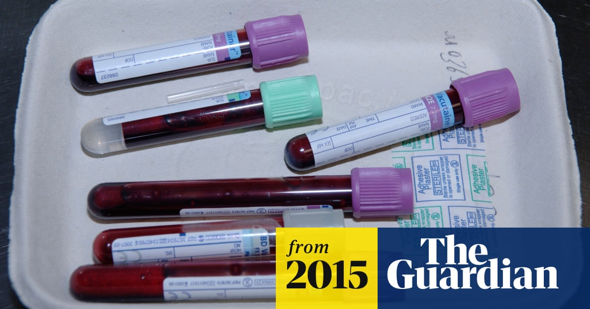 New Ovarian Cancer Test Twice As Effective As Existing Methods Cancer Research The Guardian