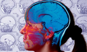 Brain Science The Answer To Helping Primary Pupils Cope With Exam