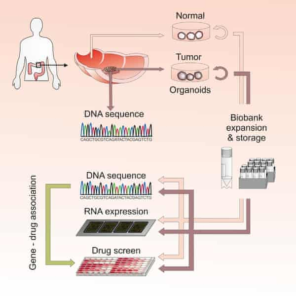 A flow chart showing how the organoid cultures are created from a combination of healthy and cancerous patient tissue and used for drug screening.