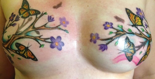 cd71c3b5b The tattoos that turn breast cancer surgery scars into works of art    Society   The Guardian