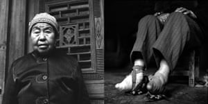 Pue Hui Ying: 76 years old in 2011.  Yunnan Province.   Pue's feet were bound at seven and were briefly unbound at 12 (in 1949), as was required at that time. Unbinding hurt as it forced the women to readjust the way they stood, and walk with broken toes. [Because of this], Pue has kept her feet bound to this day. An avid bowler, she showed me her pin-balls and [said] she travelled to Kunming once a month to take place in a tournament