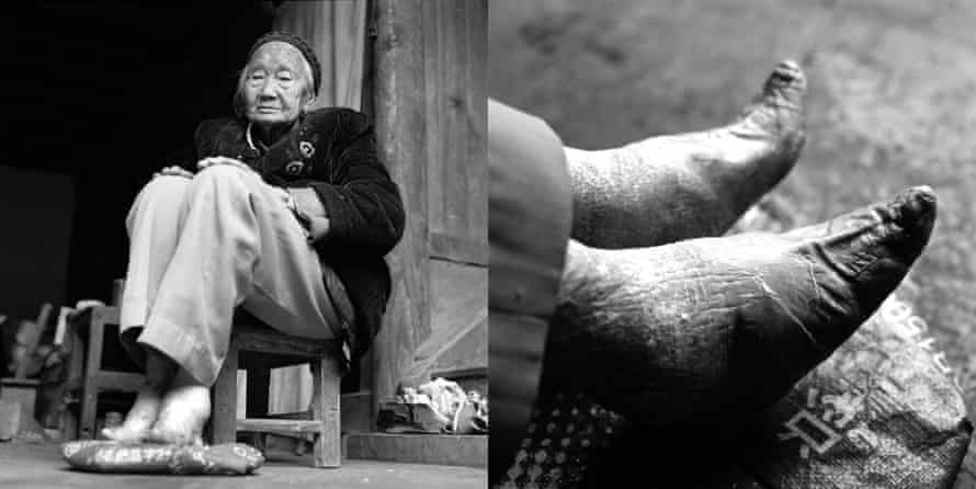 Women with bonded feet and sex