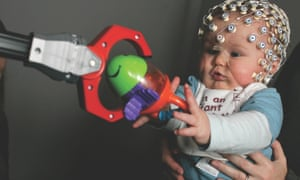 Eight-month-old baby Thomas Crabtree having his brain monitored while playing.