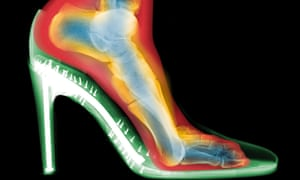 What damage are high heels doing to your feet?