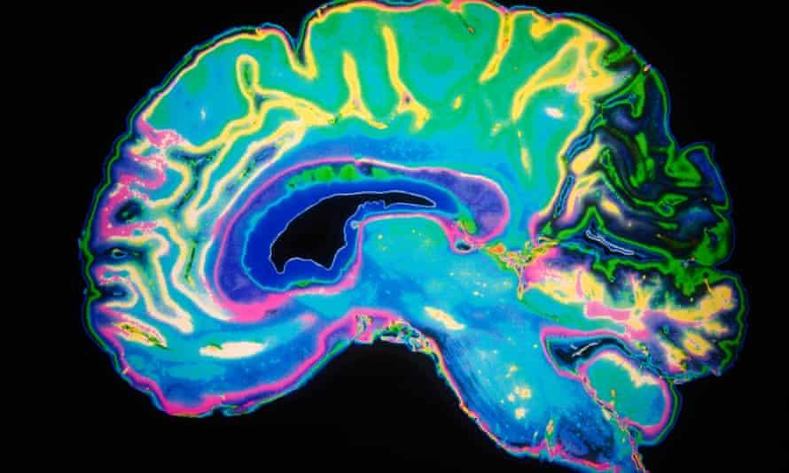 Artificially Coloured MRI Scan Of Human Brain