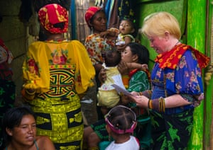An albino woman with friends. The islanders, who have one of the highest populations of albinos in the world
