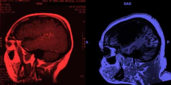Brain scans of participants in the Johns Hopkins study