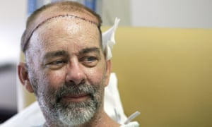 James Boysen is interviewed in his hospital bed at Houston Methodist hospital in Houston, Texas, after doctors said he received the world's first skull and scalp transplant.