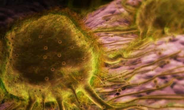 A conceptual visualisation of breast cancer cells.