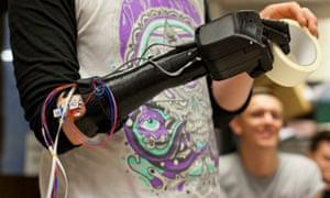 Startup Open Bionics 3D-printed bionic hand