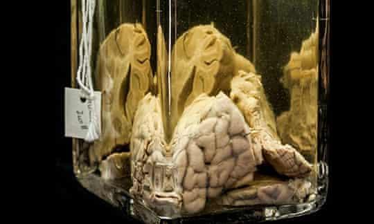 A 'wet' specimen from the Mütter Museum in Philadelphia