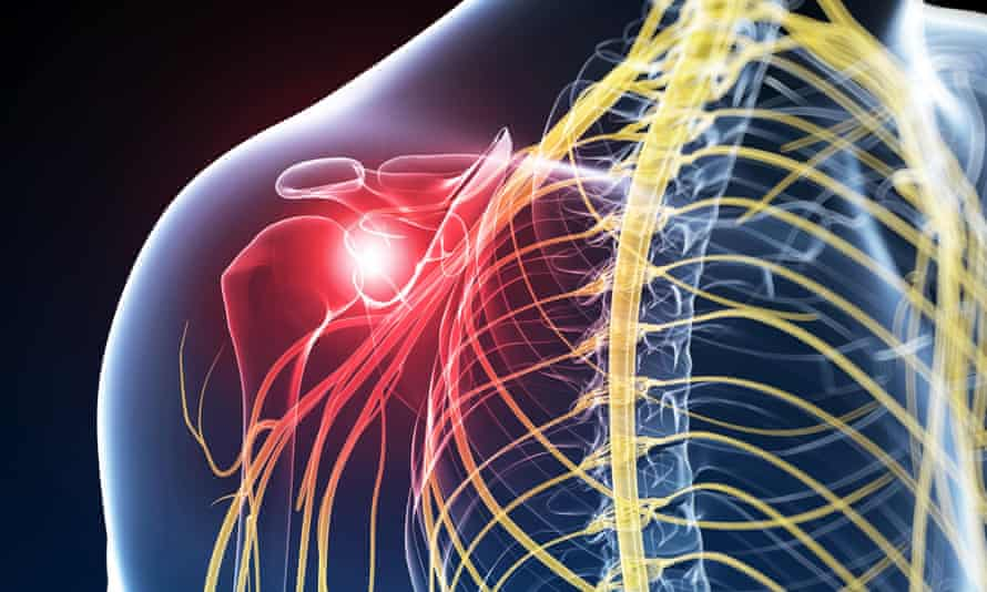 Pain from CRPS