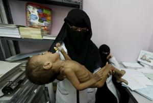 A nurse holds a malnourished child at a hospital
