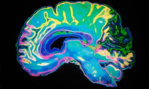 An MRI of a human brain. Scientists have found that the B2M protein builds up in the blood and brain with age, causing memory impairment.
