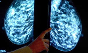 A mammogram showing a breast tumour. Around half of all women diagnosed with breast cancer each year could potentially benefit from the latest findings.