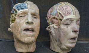 Two plaster medical heads. image supplied by phoebe@reesandco.com