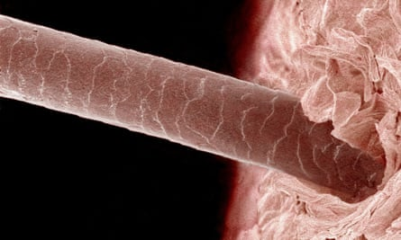 Magnified human strand of hair