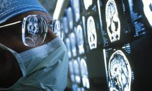 Surgeon examing MRI scans of a brain