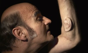 Third ear … Australian performance artist Stelarc has been growing a human ear on his arm for the last nine years.