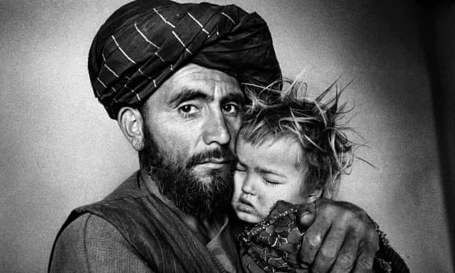 Afghan girl with malaria