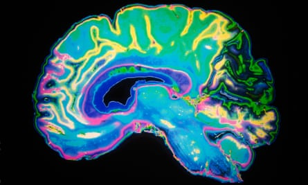 Artificially Coloured MRI Scan Of Human Brain.