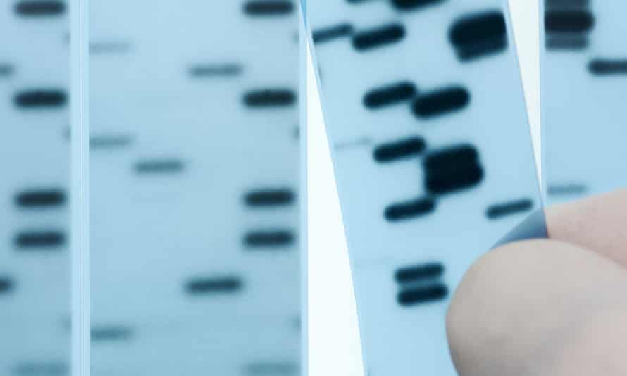 DNA sequencing. Scientist points to bands representing nucleotide bases (A,C,T,G) in an x-ray image of a gel.  Sanger