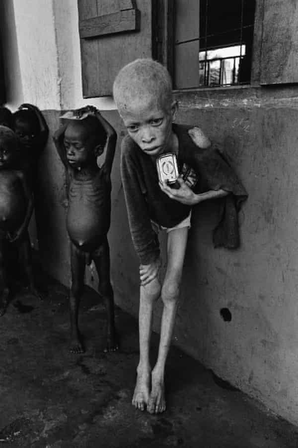 An albino boy in a Biafra orphanage, 1969.