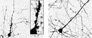 HERV alters motor neuron morphology