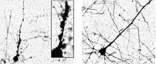 HERV alters motor neuron morphology