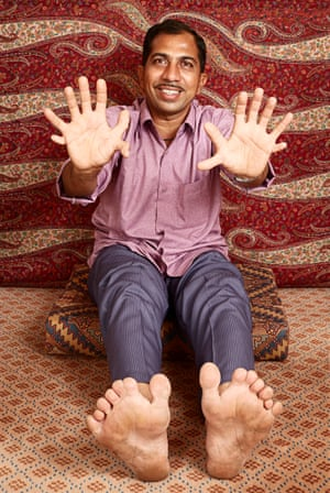 Devendra Suthar - Most Fingers & Toes