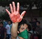 Iran protestor's bloodied hand