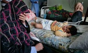 Injured child in Misrata