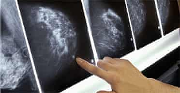 Mammogram / breast cancer