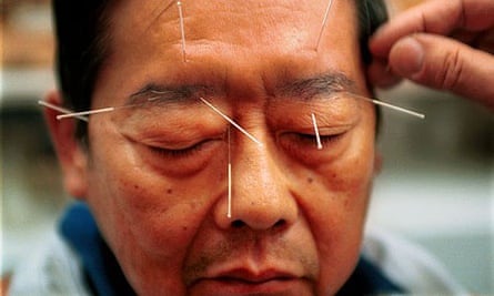 A man undergoing acupuncture