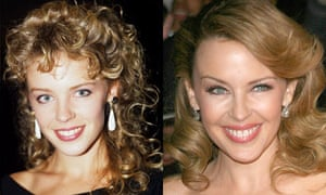 Before and after of Kylie Minogue