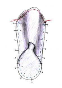 Zapatillas, figura C