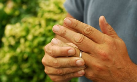 Marriage or Divorce: man with wedding ring
