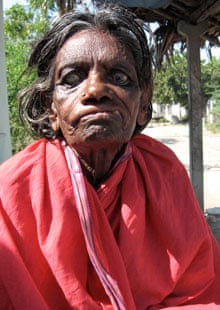 Leprosy sometimes causes nerve damage in the face