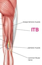 Running into problems: iliotibial band friction syndrome