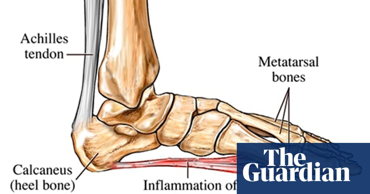 Running into problems: plantar fasciitis, or jogger's heel | Running | The  Guardian