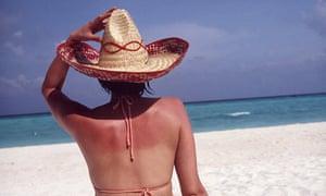 A woman sitting on a beach sunbathing