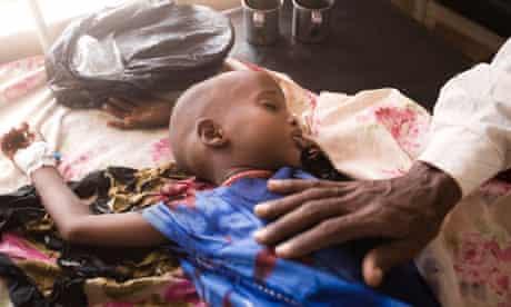 Somali childnchild in refugee hospital